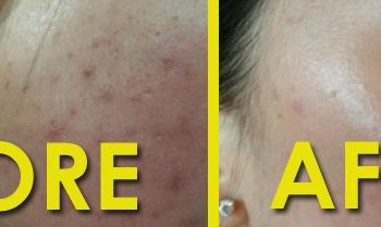 before and after bio aqua peel