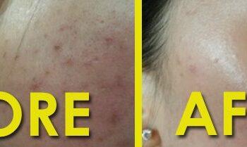 before and after bio aqua peel