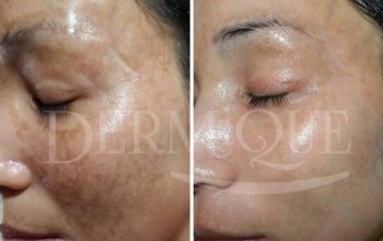 Pigmentation ( before and after )